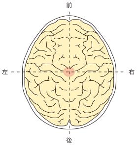 頭頂葉障害