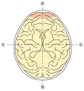前頭葉障害