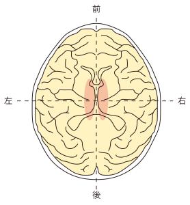 側頭葉左右内側障害