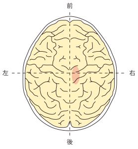 頭頂葉右側障害
