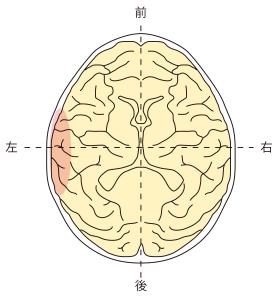 側頭葉左側障害