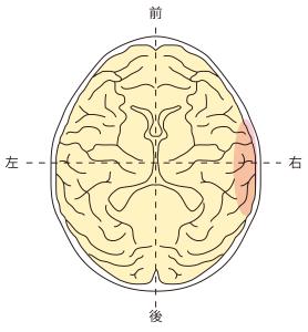 側頭葉右側障害