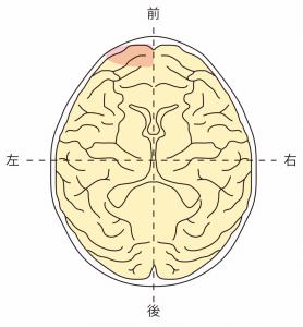 前頭葉左側障害