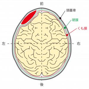 硬膜外血腫